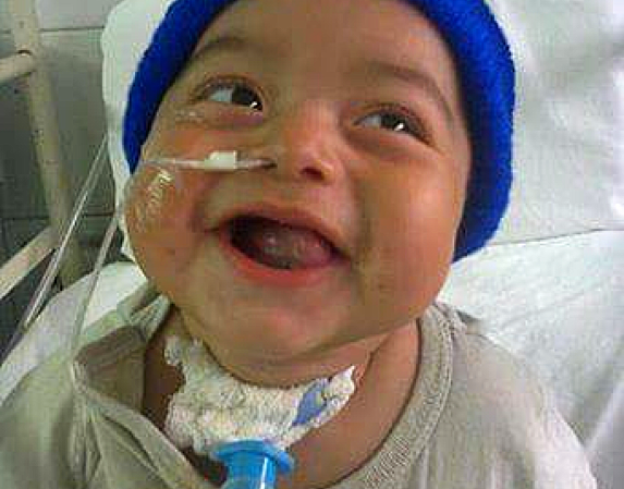 positive baby boy in his operation